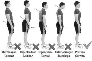 Como corrigir a postura